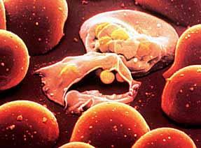 Zarodziec malarii infekuje czerwone krwinki