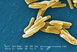 Pałeczki gruźlicy, Mycobacterium tuberculosis