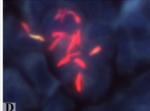 Prątki gruźlicy wybarwione metodą AR (auramina-rhodamina)
